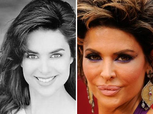 Bored To Death 10 Worst Celeb Plastic Surgery Jobs